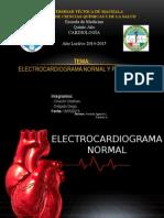 Electrocardigrama
