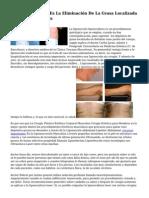 La Liposucción Láser Es La Eliminación De La Grasa Localizada De Forma Definitiva