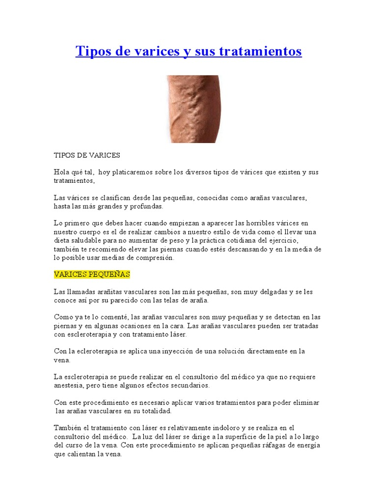 dieta de las tres semanas para varices