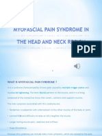 Myofascial Pain Syndrome In