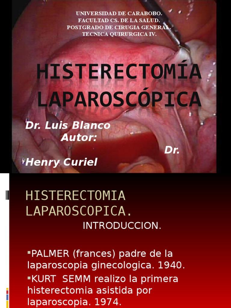 Histerectomia Laparoscopica
