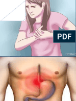 (01) Anatomia y Fisiologia Del Esofago.