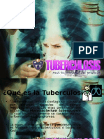 Tuberculosis, una enfermedad del presente