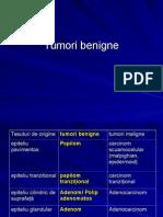 tumorin benigne