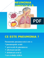 Pneumonia Pneumococică Pentru Licenta Simina