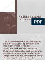 fissure sealant ppt.pptx