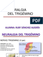 Neurlgia Del Trigemino.