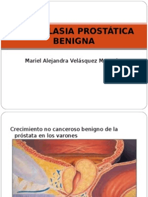 hiperplasia prostatica benigna ppt