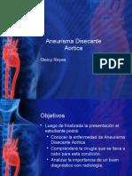 Aneurisma Disecante Aortica