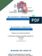 bloqueoscardiacos