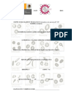 anomalaseritrocitos