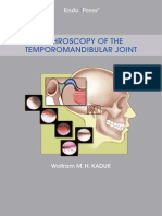Arthroscopy of the Temporomandibular Joint_Storz