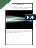CANCER DE HUESO.docx
