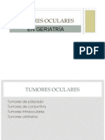 Tumores-oculares.pptx