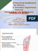 Generalidades Fracturas