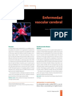 Enfermedad Vascular Cerebral 01