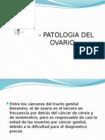 Ovario Neoplasia