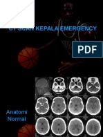 CT Scan Kepala Emergency