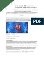 Como Destapar Las Arterias Del Corazón Sin Cirugía