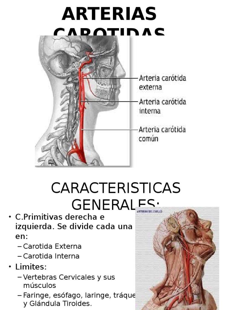 Excepcional Anatomía De La Arteria Carótida Interna Intracraneal ...