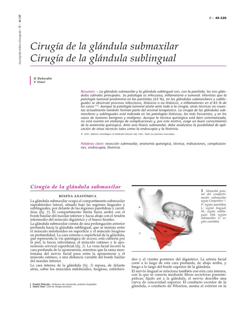 Cirugía de La Glándula Submaxilar y Sublingual