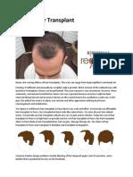 Hair transplant in pune hair transplant cost in pune hair transplant clinics in pune
