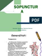 Presopunctura-prezentare ssss