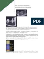 Clasificación de las áreas edéntulas y las características anatómicas de ellas.docx
