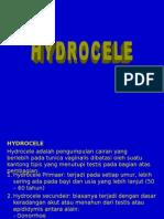 Bedah - Hydrocele