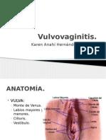 Vulvovaginitis.pptx