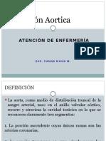 Zz Diseccion Aórtica