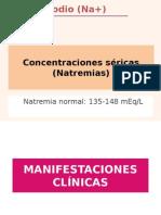 Natremias