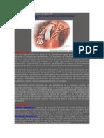 Crisis Hipertensiva en Urgencias