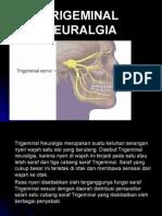 Neuralgia Trigeminus