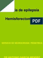 CIRUGIA DE EPILEPSIA