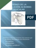 Lesion Acromio Clavicular