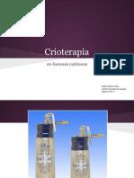 Crioterapia en Lesiones Cutaneas