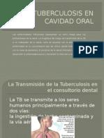 tuberculosis en cavidadoral-