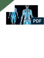 ptos fibromialgia