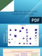 ANOMALIAS CELULAS HEMATOPOYETICAS