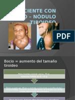 El Paciente Con Bocio – Nódulo Tiroideo