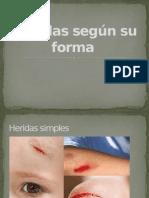 Heridas según su forma.pptx