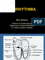 Arrhythmia (Aritmia)