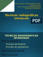 Técnicas Radiograficas