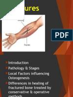 Fractures pptx