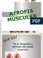 Atrofia Muscular