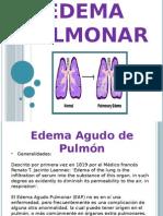 DIAPOS DE EDEMA PULMONAR