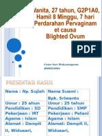 181000466 Presentasi Kasus Blighted OVUM SARI Ppt