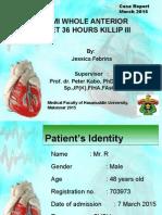 Stemi cardio