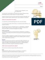 Osteoartritis de Cadera